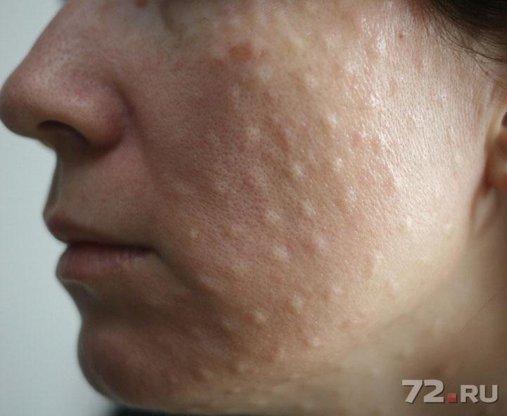 Шишка под кожей после уколов что делать